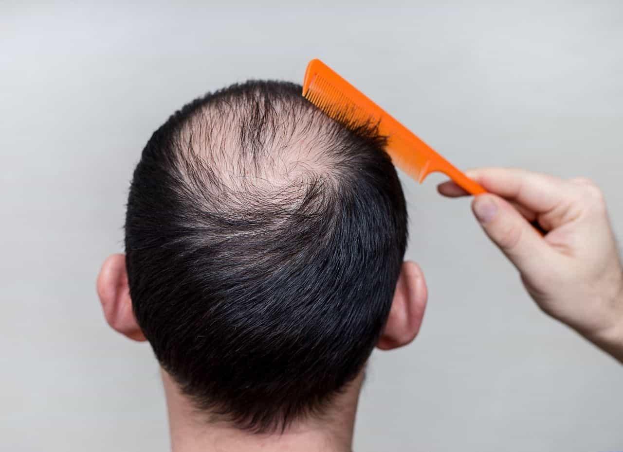 Alopecia areata renia e flokeve