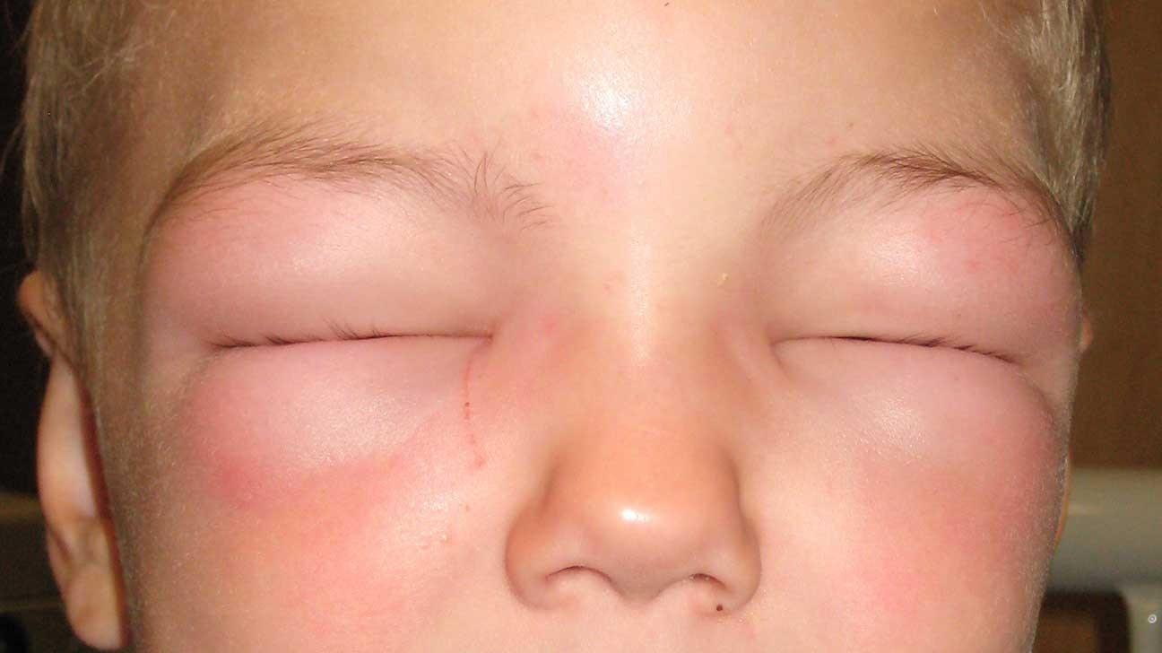 Anafilaksi - Simptomat, Diagnostifikimi dhe Parandalimi