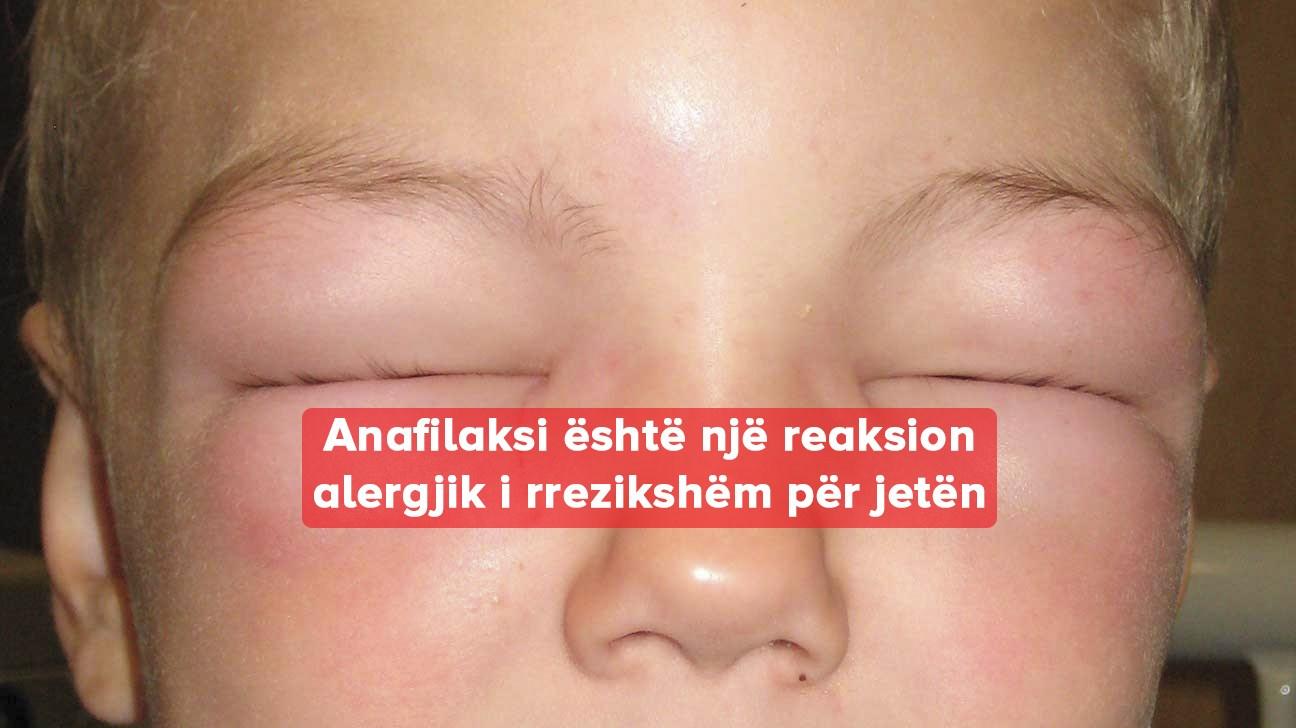 Anafilaksi