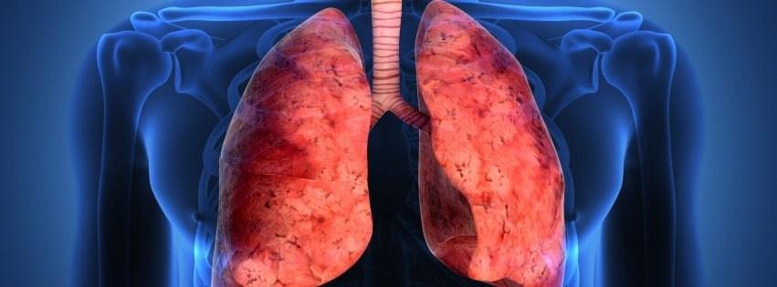 Bronkiti Kronik: Simptomat, Diagnostifikimi dhe Parandalimi