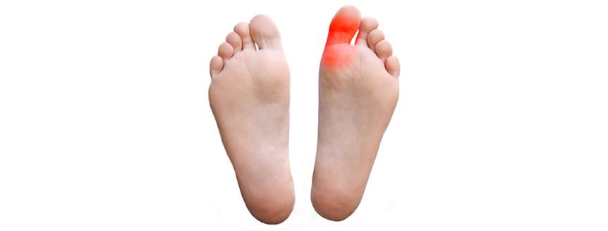 Cerma: Simptomat, Diagnistifikimi dhe Trajtimi