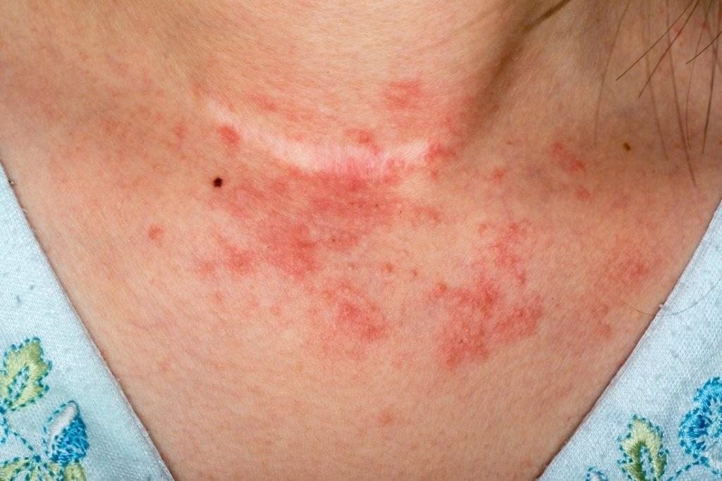 Ekzema dhe Dermatiti Atopik