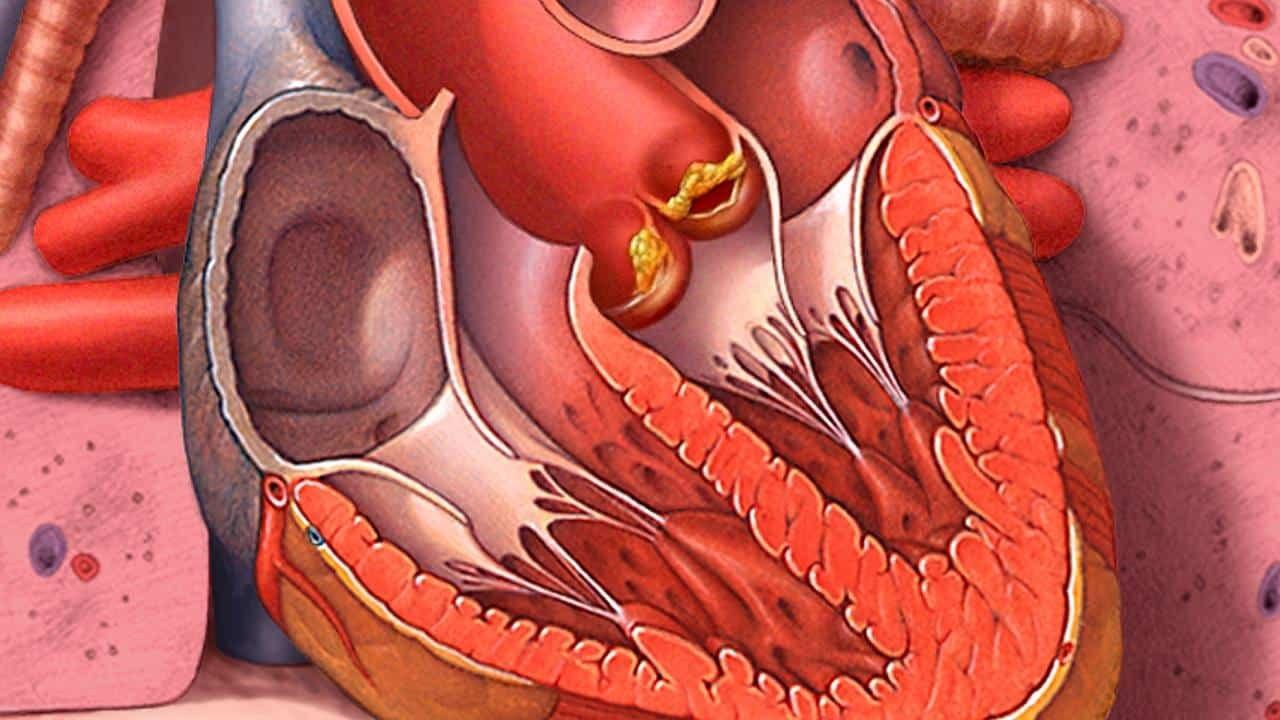 Endokarditi Bakterial