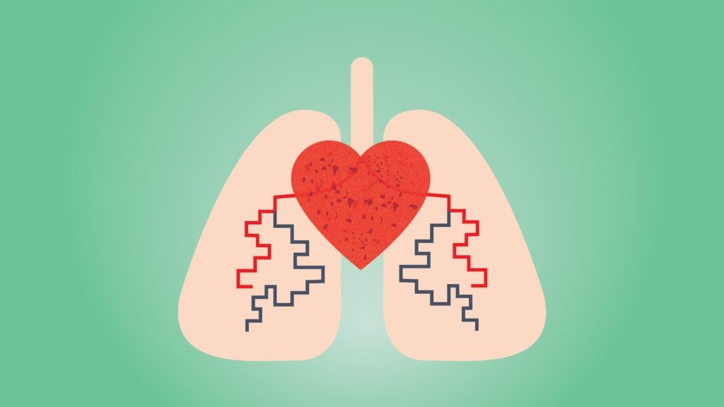 Hipertensioni Pulmonar