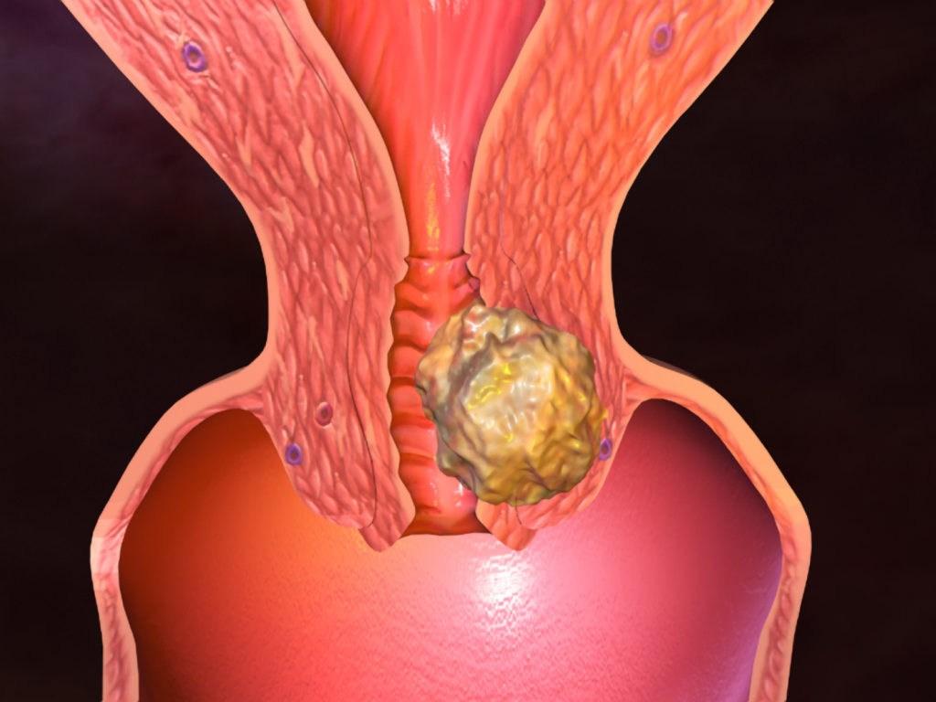 Kanceri Endometrial