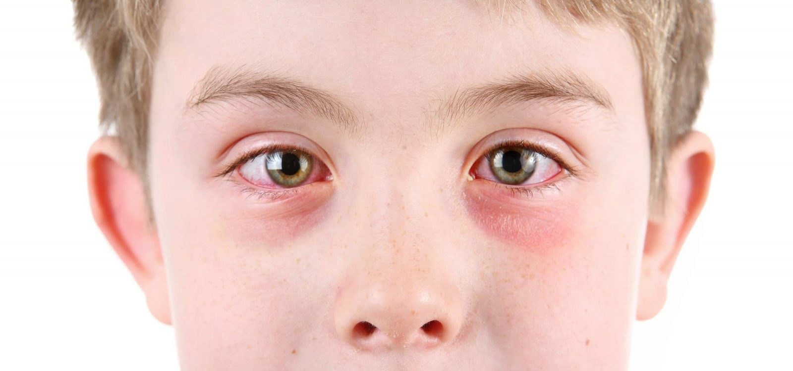 Konjuktiva Alergjike (Syri i Kuq)