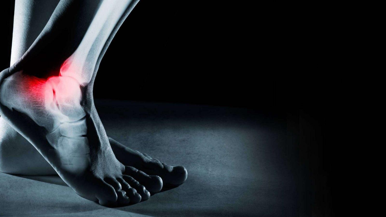 Përdredhja e Kyçit të Këmbës