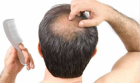 Rënia e Flokëve te Meshkujt