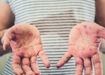 Sëmundja e duarve, këmbëve dhe gojës