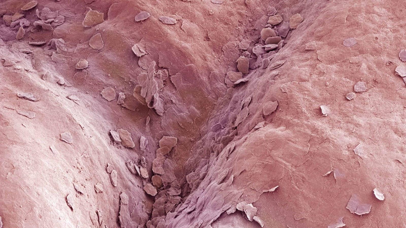 Vaginoza bakteriale