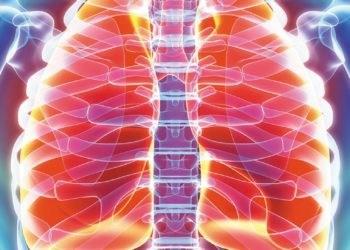 bronkiti akut - simptompat, shkaqet dhe trajtimi