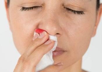 gjakderdhje e hundes