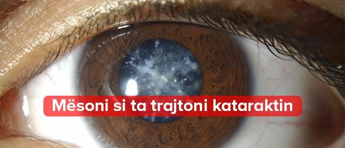 katarakti