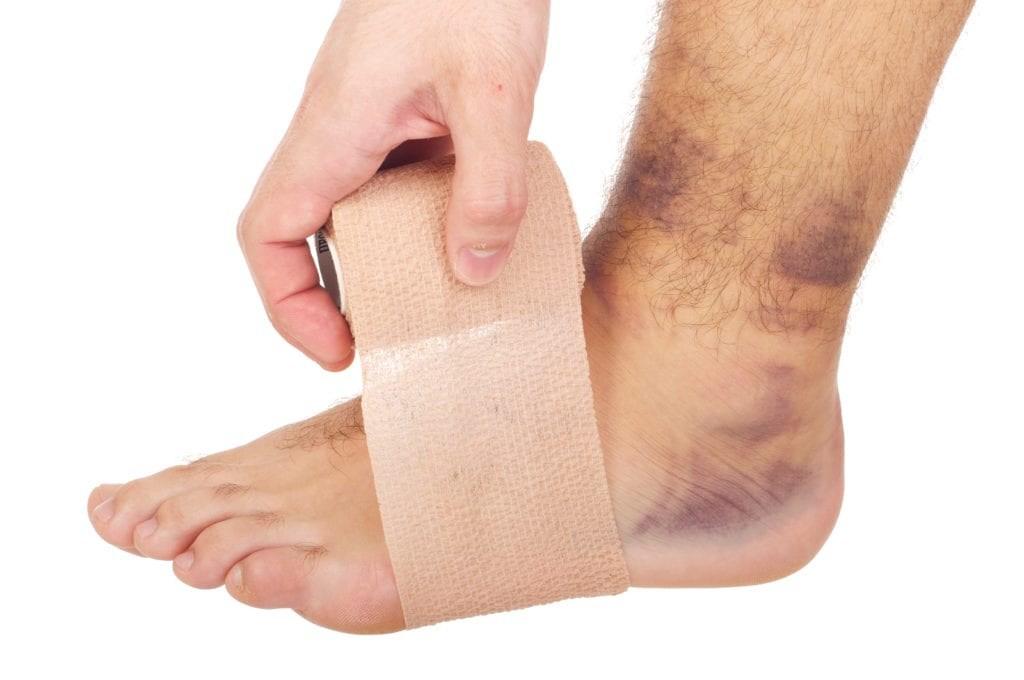 Si ta mjekojme kycin e krisur te kembes