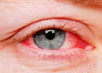 Trajtime Shtëpiake për Skuqjen e Syve