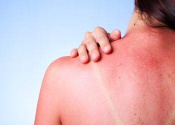 8 Mënyra për Parandalimin e Djegies nga Dielli