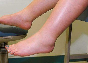 Këmbë, nyje dhe duar të ënjtura gjatë shtatëzanisë