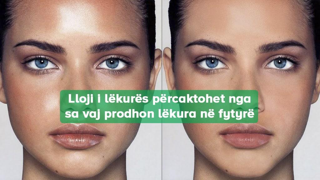 Informata për Fytyrë Yndyrëshme