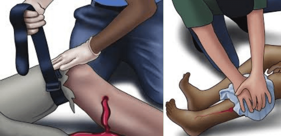 Ndihma e Parë e Plagës me Armë Mund të Shpëtojë Një Jetë. Ja Çfarë Duhet të Bëni