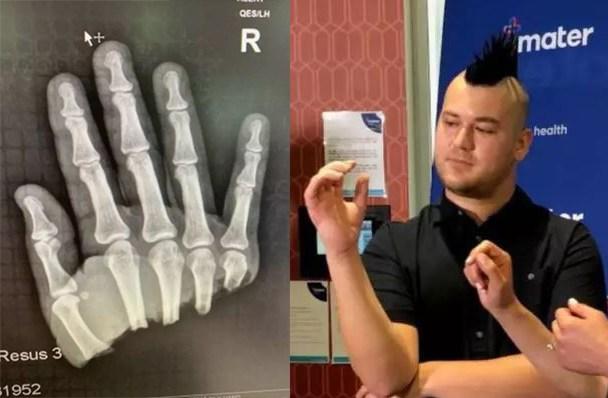 Mjekët Bëjnë 'Mrekulli' për 23-Vjeçarin, pasi Humbi Gjysmën e Dorës në Grirëse të Mishit