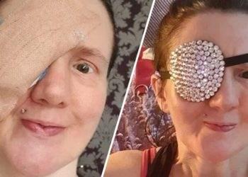 Po Fshinte Fytyrën me Peshqir, 45-Vjeçarja Mbetet me një Sy pas Incidentit të Pazakontë
